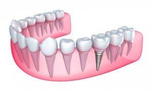 DentalImplantSm