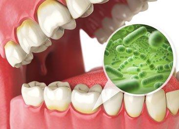 Bad Breath Dental Problem Dentist St Augustine