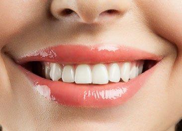 Dental Bonding Porcelain Veneers Dentist St Augustine